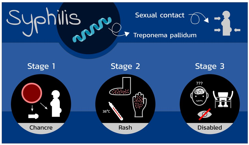 3 Warning Signs and Symptoms of Syphilis